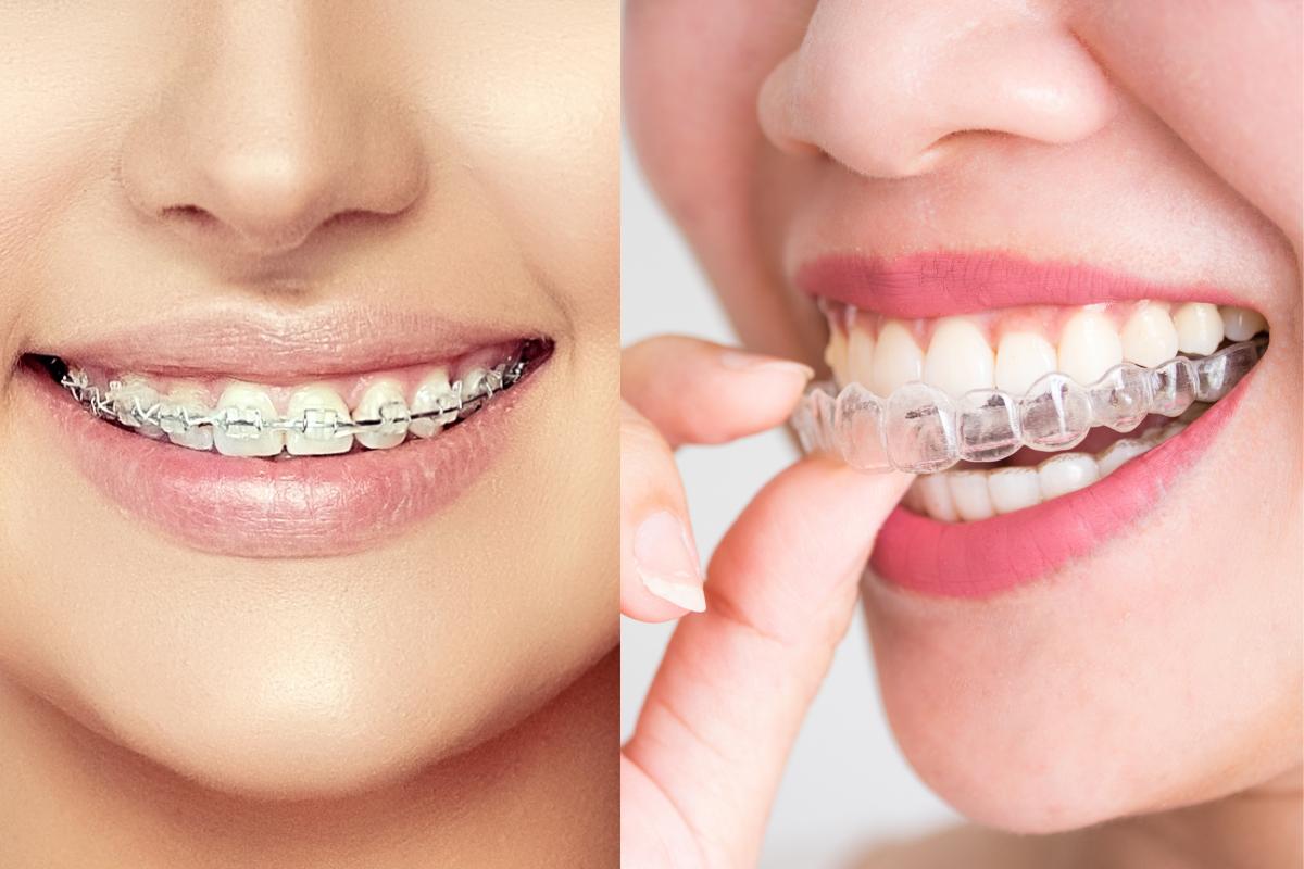 clear braces vs Invisalign braces
