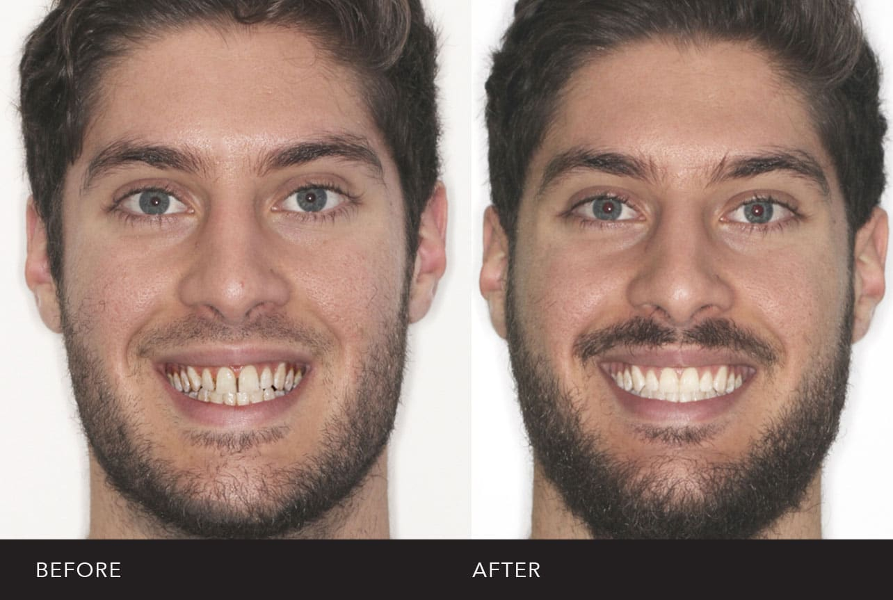 Before and After Urban Smile treatment